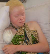 Brutal Attacks And Murders Of Tanzania's Albinos Continue